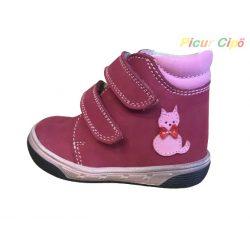 Florens - átmeneti gyerekcipő, bordó, rózsaszín, cicás